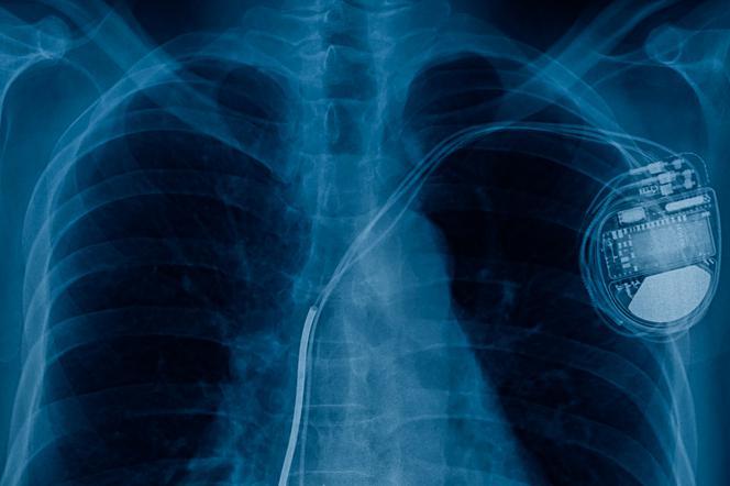 technologia medyczna