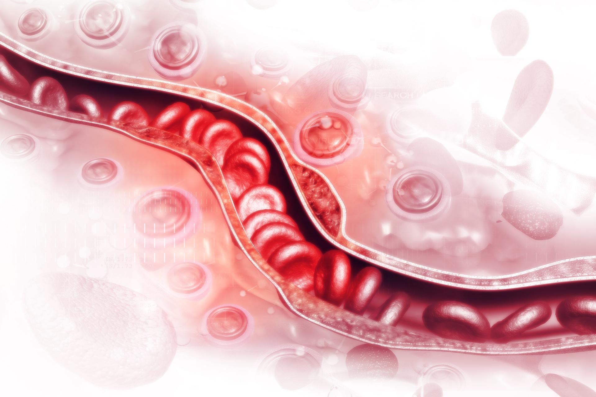 Trombektomia