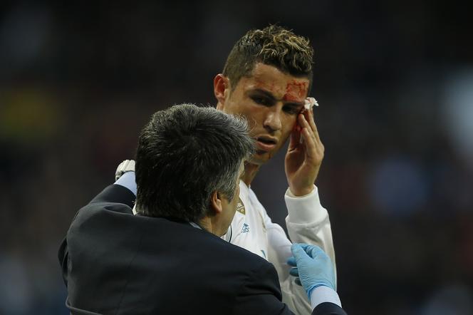 Zakrwawiony Cristiano Ronaldo Przegląda Się W Telefonie Fryzura