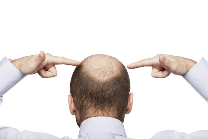 Pięć Sposobów Na łysienie U Mężczyzn Poradnikzdrowiepl