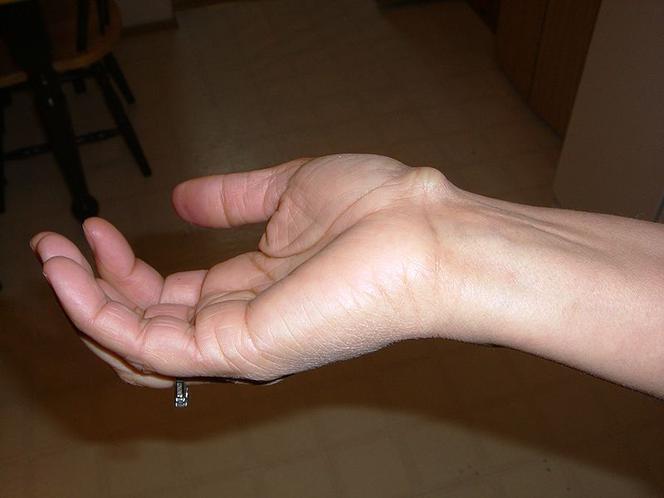 zapalenie nadgarstka durere și amorțeală a genunchiului