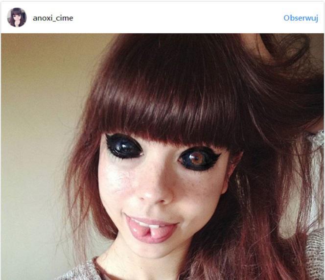 Dziewczyna Z Tatuażem Oczu Nie Była Jedyną Ofiarą Zarzuty