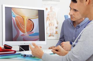 zapalenie prostaty w męskich objawach montaż)