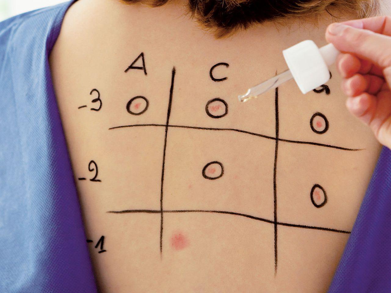 testy alergiczne kiedy sie robi