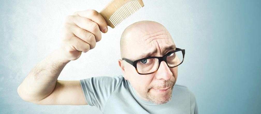 nadmierne wypadanie włosów przyczyny u mężczyzn