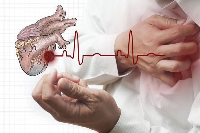 Klucie W Sercu Bol W Klatce Piersiowej Przyczyny Poradnikzdrowie Pl