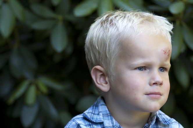 Urazy Głowy U Dzieci Co Robić By Ich Uniknąć Wywiad Z