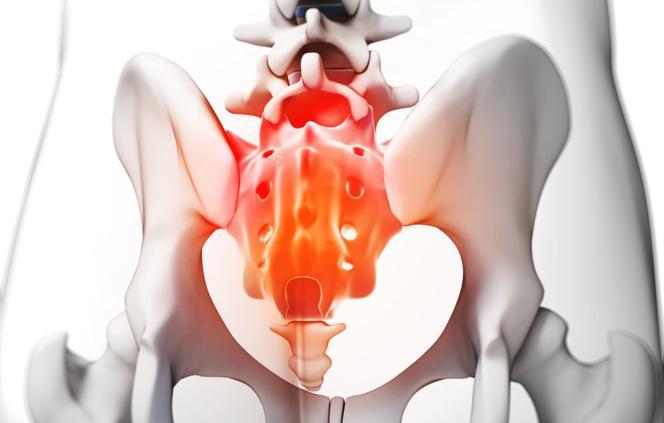 Ból Kości Ogonowej Przyczyny Co Powoduje Ból Kości