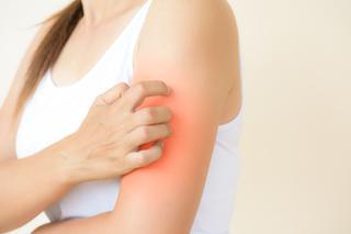 Dermografizm A Tatuaż Wiadomości Informacje Poradnikzdrowiepl