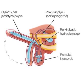implantant dla penisa)
