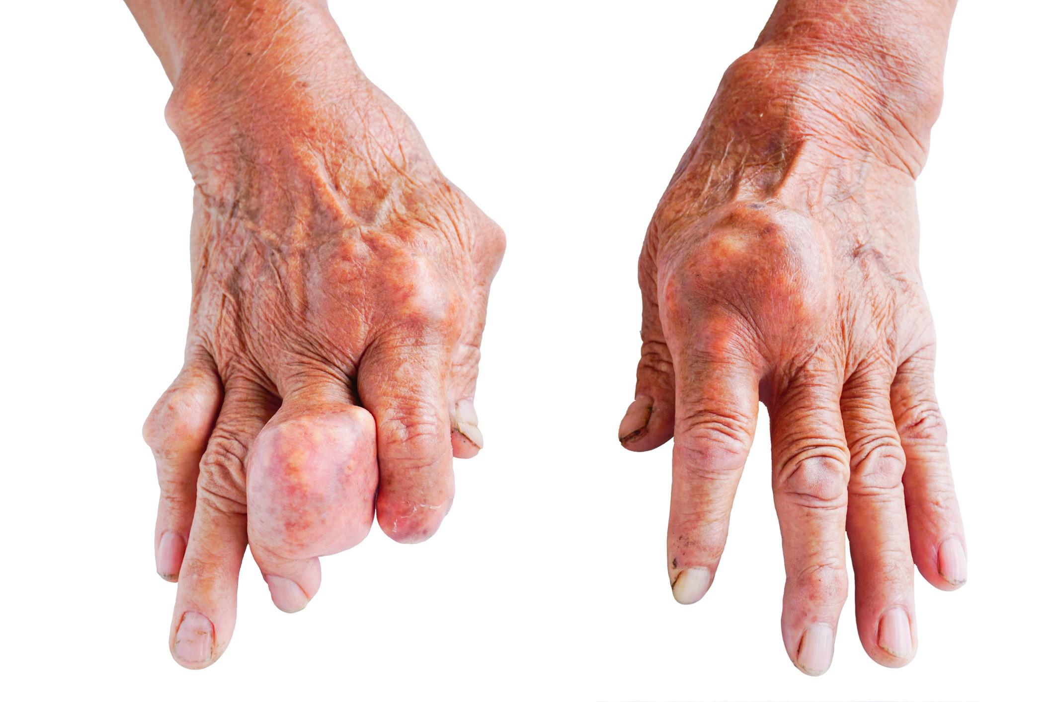 Znalezione obrazy dla zapytania artretyzm